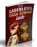 Laserless Tattoo Removal Coupon Codes